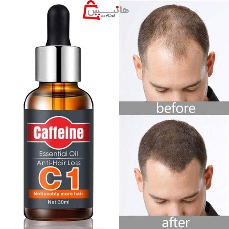 تصویر سرم اورجینال ضد ریزش و تقویت ریشه مو کافئین C1
