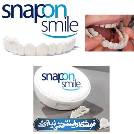 image لمینت متحرک دندان
