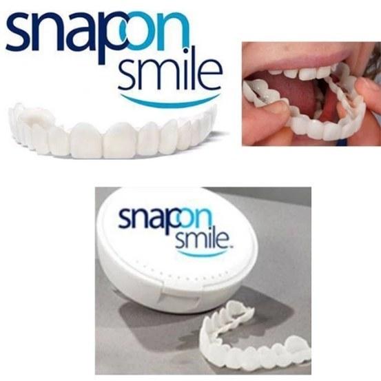 تصویر لمینت دندان اسنپ ان اسمایل فک بالا و پایین