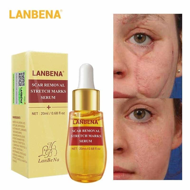 تصویر سرم پاک کننده جای زخم،سوختگی و آکنه لانبنا LANBENA Serum Acne Remover